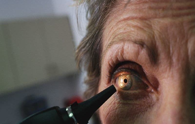 Eyes Could Be Window to Predicting Alzheimer's