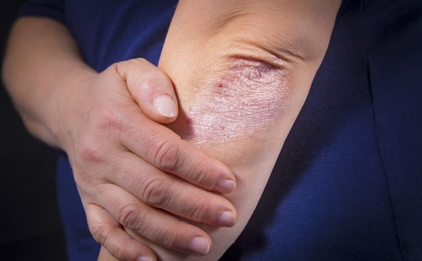 Holistic Approaches to Psoriasis Treatment